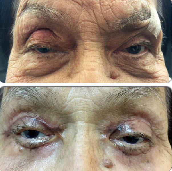Blepharoplasty Suture Removal » Eyelid Surgery: Cost, Photos