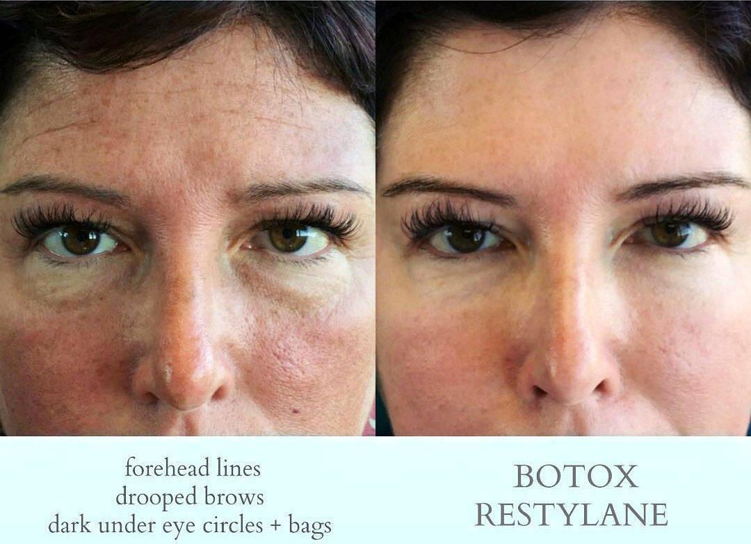 botox eye lift