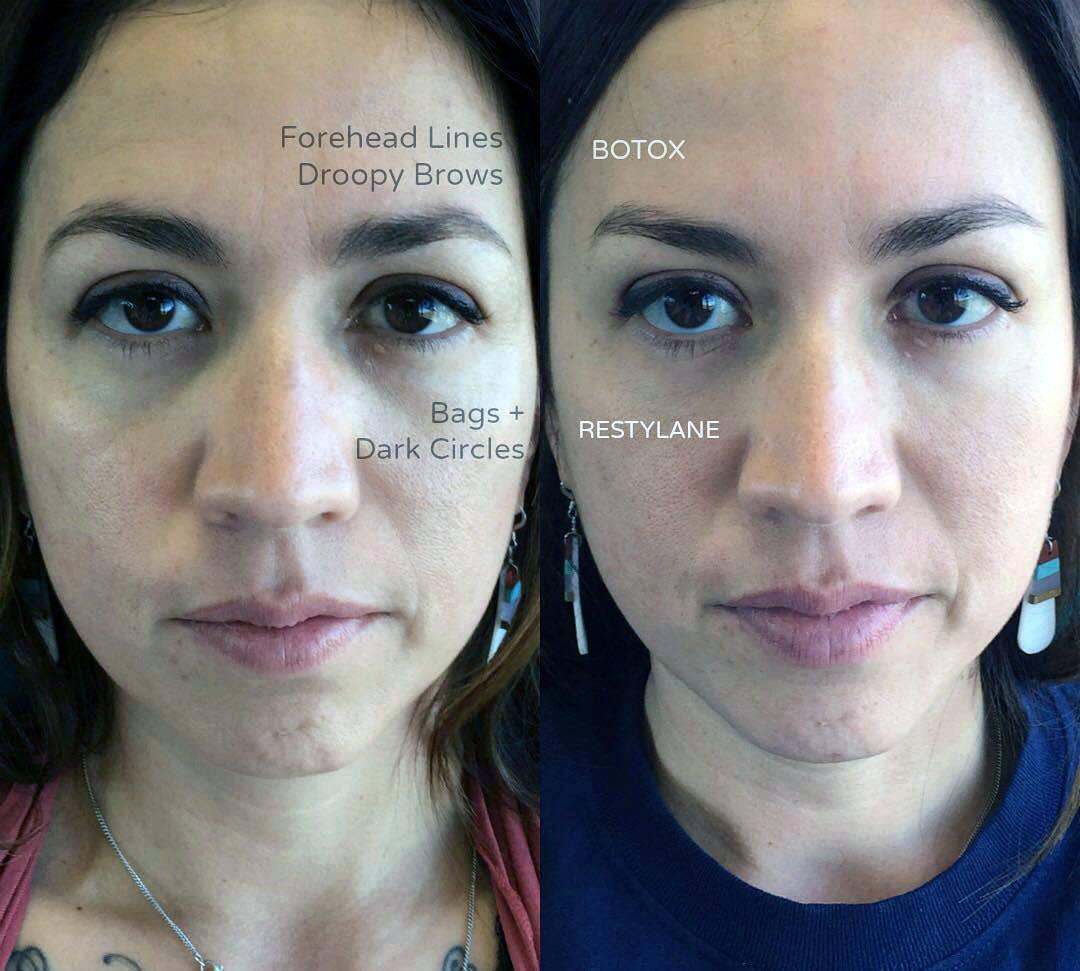Eyebrow Lift Using Botox Eyelid Surgery Cost Photos Rewiews Q A
