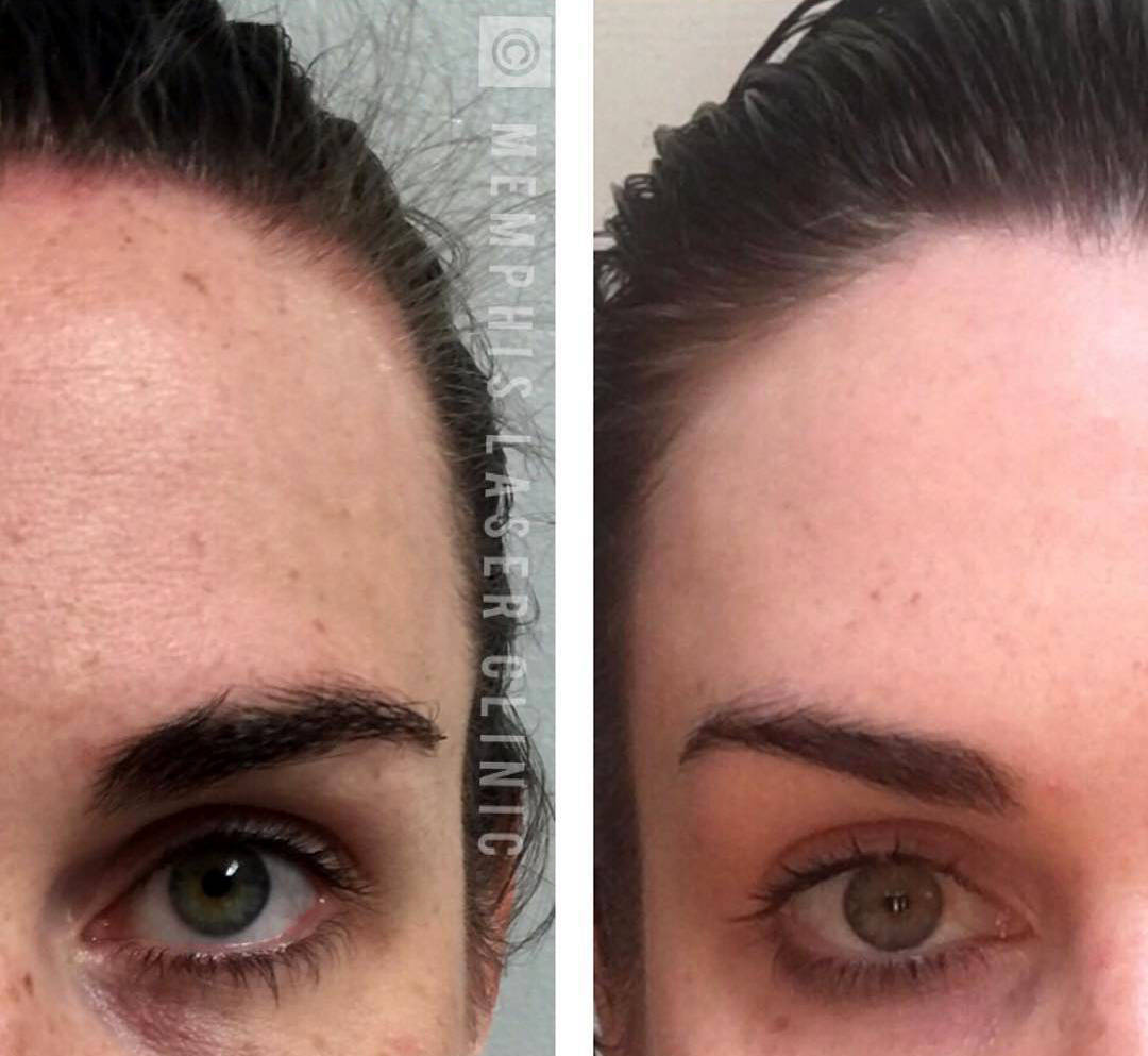 Plastic Surgery Before And After: Brow Lift Cost