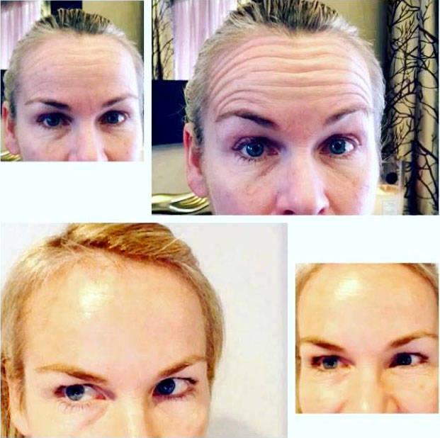 Eyebrow Lift Using Botox Eyelid Surgery Cost Photos Rewiews Qa