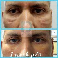 Cost Of Laser Blepharoplasty 187 Eyelid Surgery Cost
