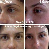 Cost Of Laser Blepharoplasty » Eyelid Surgery: Cost, Photos